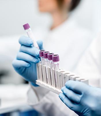 Lab Tests & Diagnostics